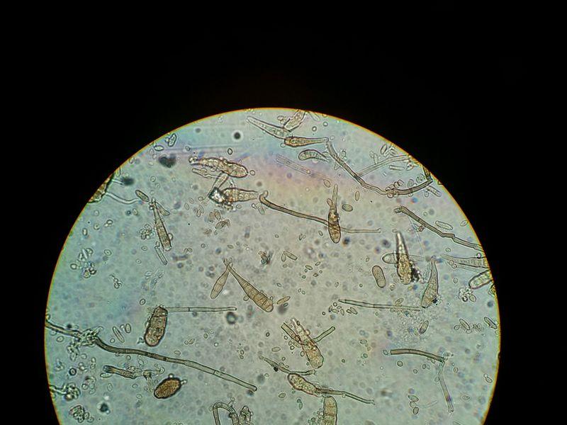 Spores on potato leaves copy